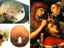 holes in skulls